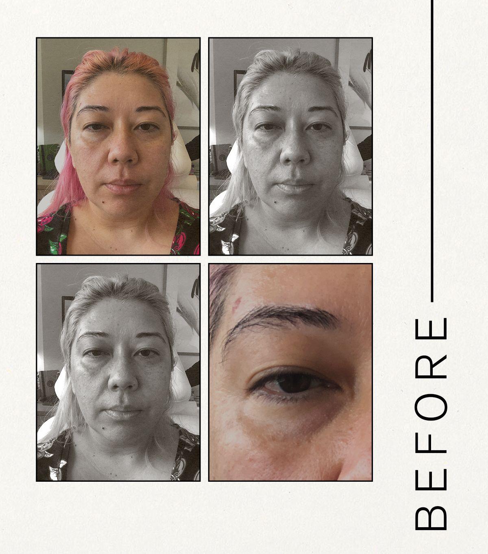 tear trough filler review 295029 1630441498871